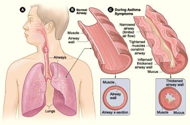asma-1-nhlbi