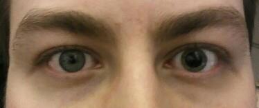 Perbedaan besar pupil mata kanan dan kiri